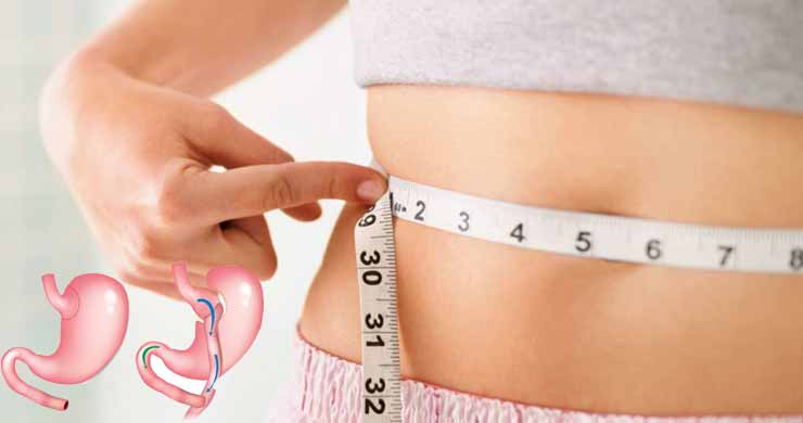 How to Restart Weight Loss After Gastric Bypass
