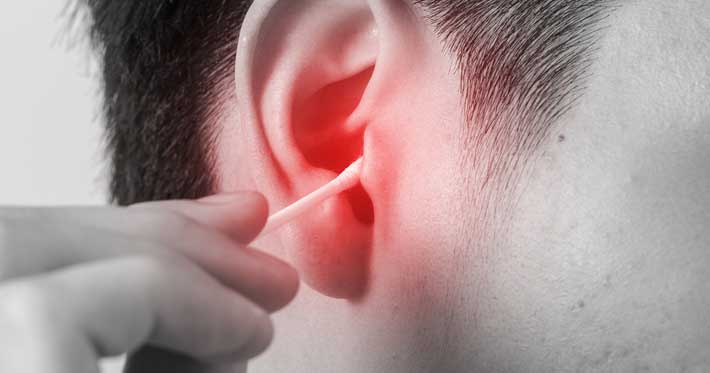 What Doctor to See For Ear Wax Removal