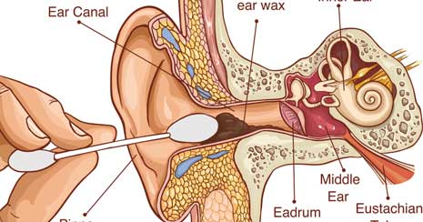 When to Pursue Medical Care for Earwax