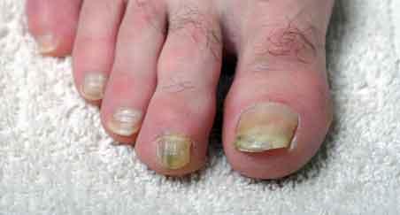 beach and I kept spare toenails